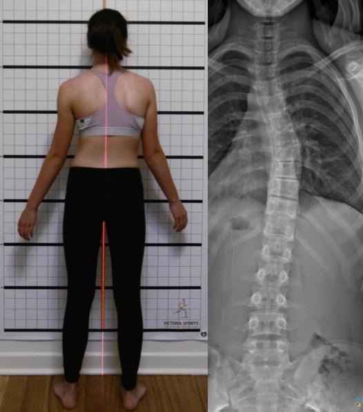 3 Curve Scoliosis | C Curve Scoliosis Example of Posture